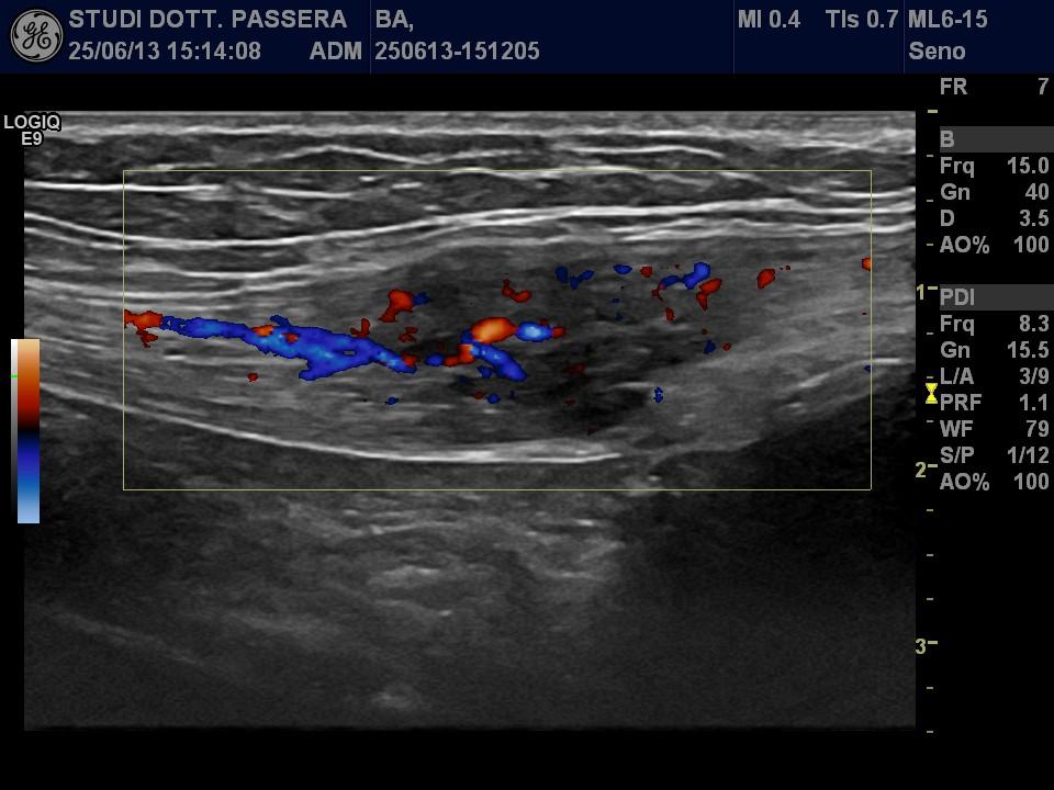 Endometriosi muscolo